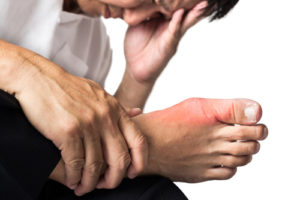 Crush foot injuries | Podiatrist Katy Texas