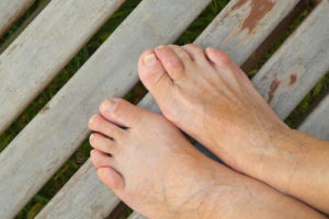 Hammertoe Treatment Katy TX | Foot Doctors