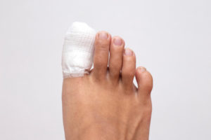 Ingrown toenail treatment Katy TX | Podiatrist